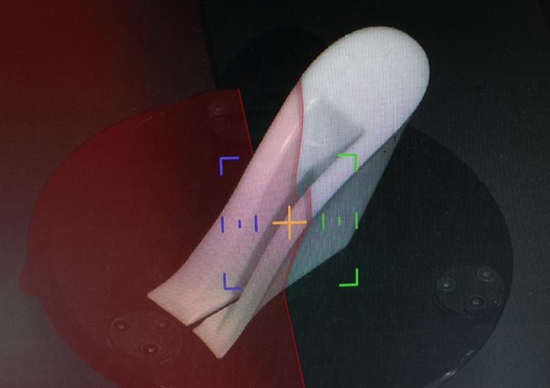 home_laser
